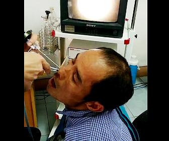 鼻の穴からヒルを取り出す