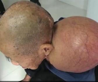 おじいさんから巨大腫瘍を取り除く