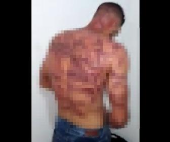 【動画】スラム街で捕まった泥棒。罰として鞭打ちされた背中がヤバい