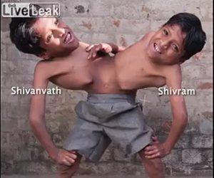 【動画】胴体が結合している結合双生児の生活が凄い
