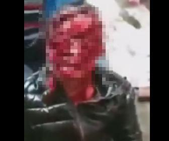 【閲覧注意動画】犬に襲われた女性の顔が恐ろしい事に…
