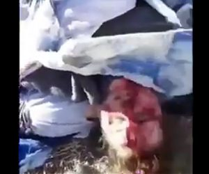 【閲覧注意動画】熊に襲われた少女の怪我がヤバすぎる衝撃映像