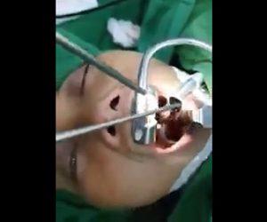 【動画】医者が男性が喉の奥から巨大な蛭を取り出す衝撃映像