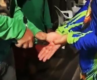 【動画】手に刺さったアカエイの毒針をペンチで引き抜く衝撃映像