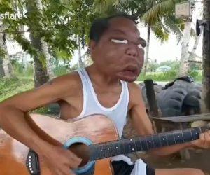 【動画】謎の病気で顔が3倍に腫れあがってしまった男性の衝撃映像
