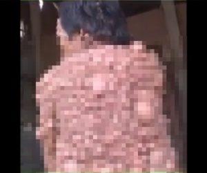 【閲覧注意動画】カンボジアで人里離れた所に住む皮膚病の男性がヤバすぎる衝撃映像