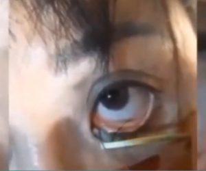 【動画】目の中の寄生虫を取り除く衝撃映像