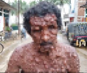 【閲覧注意動画】皮膚病により体中に腫瘍ができてしまった男性が衝撃的すぎる