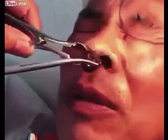 【衝撃】鼻の穴から巨大なヒルを取り出す衝撃映像