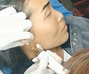 【衝撃】15歳の少女の耳にできた巨大な吹き出物から膿を出す映像が凄い