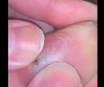 【衝撃】6週間足が痛かった女性の足から長い針が出てくる衝撃映像